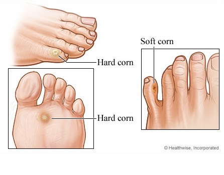 Hard Corn and Soft Corn